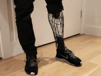 Prothèse de jambe - Exo - William Root - Impression 3D